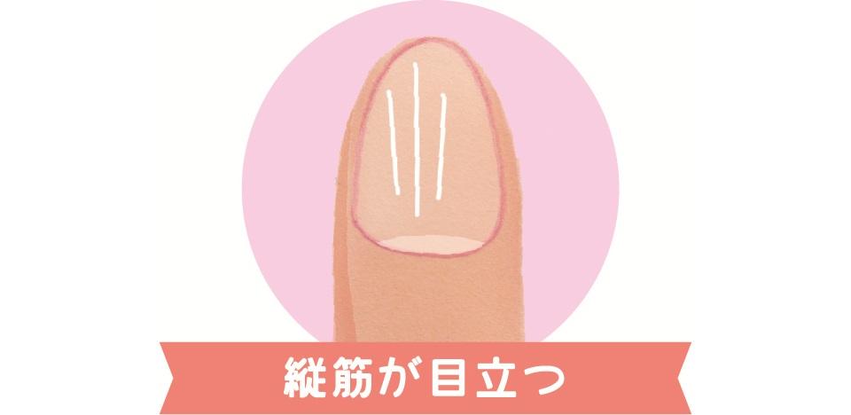 縦筋が目立つ爪のイラスト