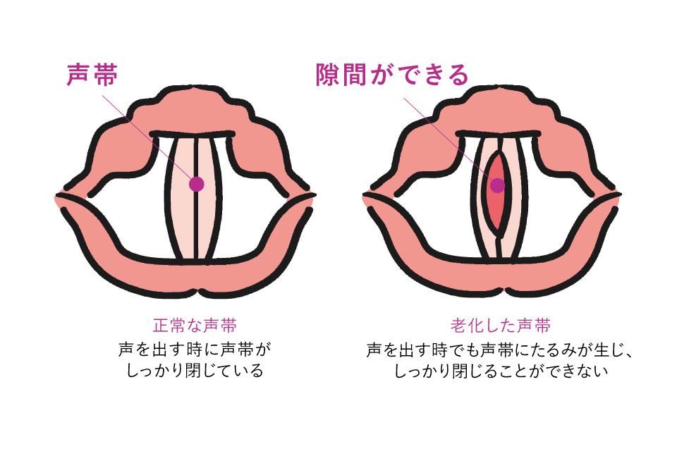 老化による声帯の変化